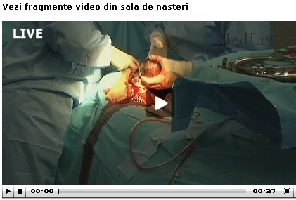 VIDEO Nastere in direct pe Internet cu Dr. Dragos Albu si echipa sa, Life Memorial Hospital