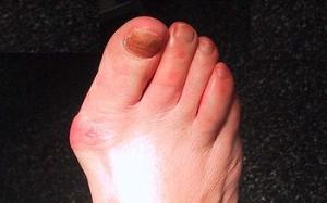 pată dureroasă pe picioare