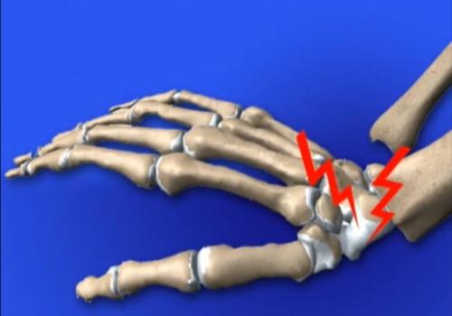 osteoporoza bolii osoase nou tratament medicamentos pentru artroză