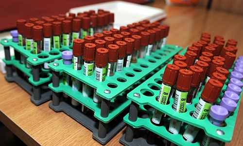 poti dona sange daca ai avut hepatita