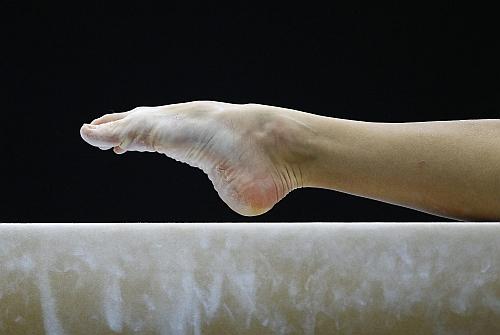 Cum să scapi de venele de păianjen de pe picioare