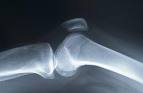 care tratează artroza și osteoporoza boli pe articulațiile picioarelor