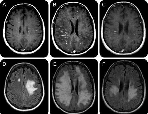 Scleroza multiplă și infecția cu COVID 19- tot ce trebuie să știe pacienții