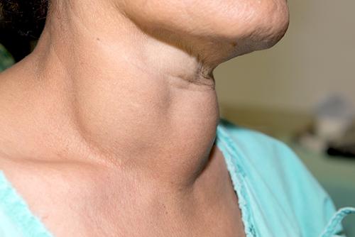 care are hipotiroidism și dureri articulare)