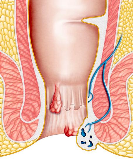 tratament articular pentru hemoroizi