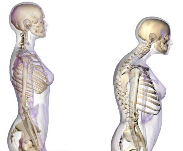 osteoporoza pierde în greutate kcal pierde grăsime