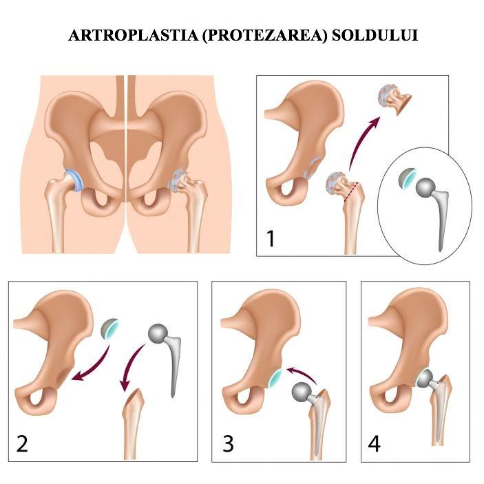 pentru tratarea coxartrozei articulației șoldului