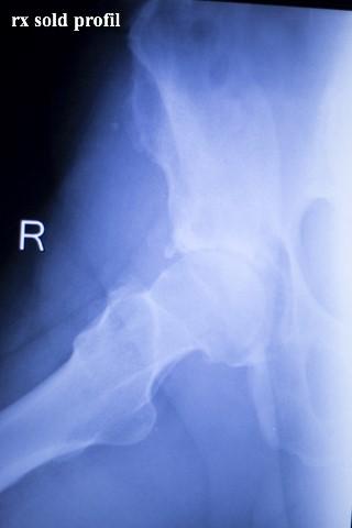 artroza semnelor radiologice ale șoldului