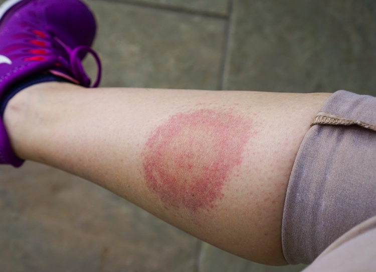 erupții cutanate pe picioare simptome