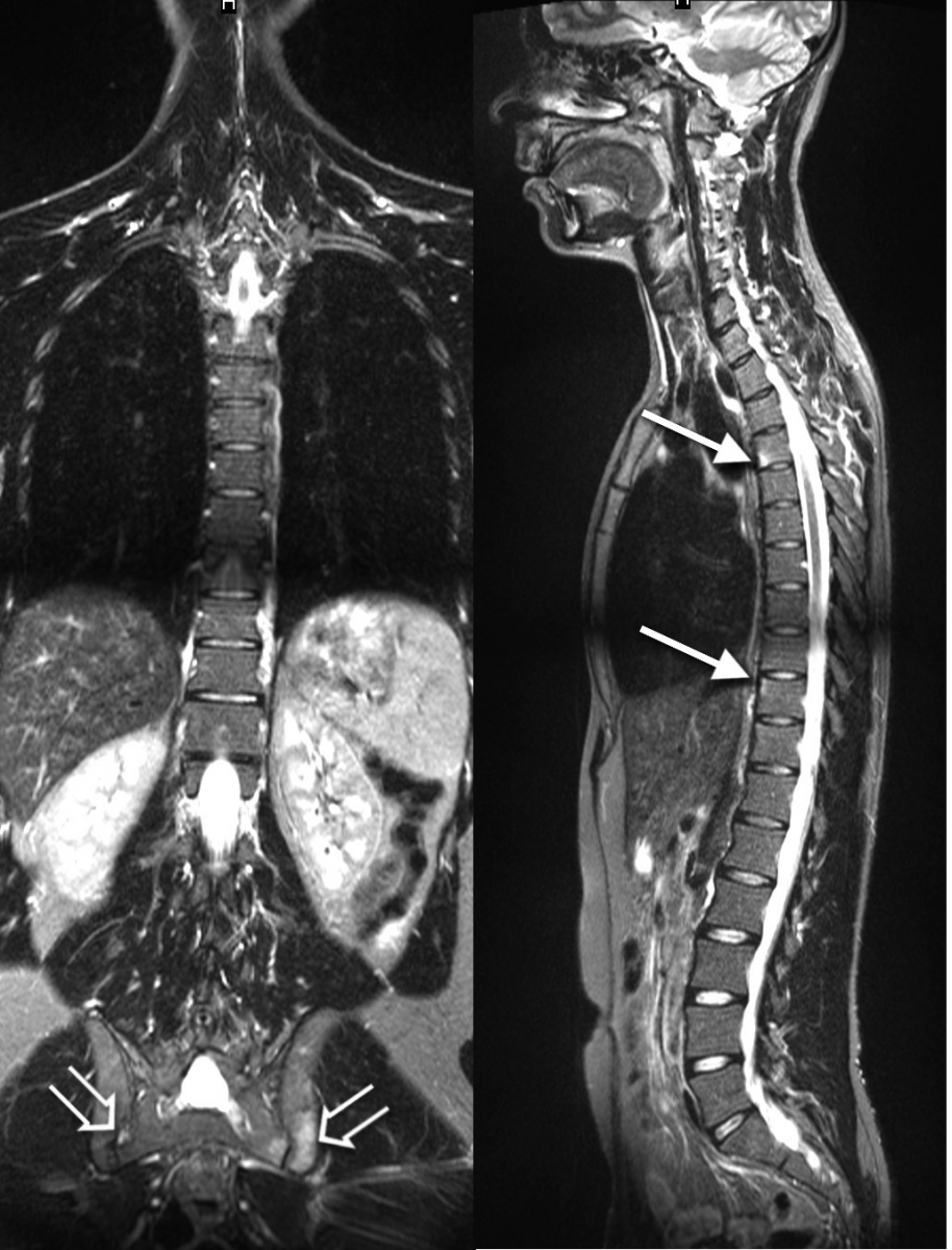 dureri articulare cu spondilită anchilozantă)