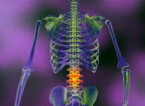 remedii pentru durerea articulațiilor și a coloanei vertebrale