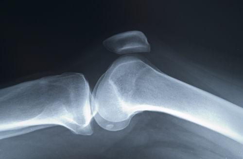 osteoporoza a genunchiului tratament de 1 grad