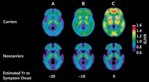 scădere în greutate cu demență vasculară Gianelle liscio scădere în greutate