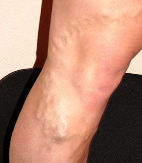 există durere asociată cu varicele