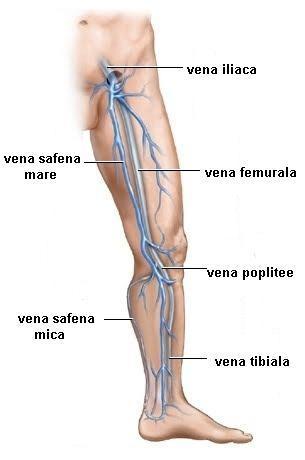 ce este insuficiența arterială și venoasă simptome ale varicelor la nivelul picioarelor inferioare
