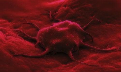 Un test de respiratie poate salva vieti prin diagnosticarea timpurie a cancerelor de esofag si stomac