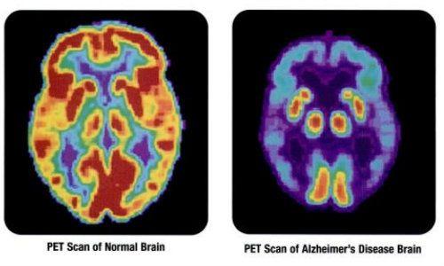 Ce tip de colesterol reduce riscul declansarii bolii Alzheimer?