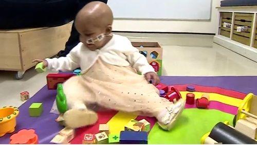 Premiera medicala in lume: o fetita de 1 an din Marea Britanie, vindecata de leucemie cu ajutorul celulelor imunitare modificate