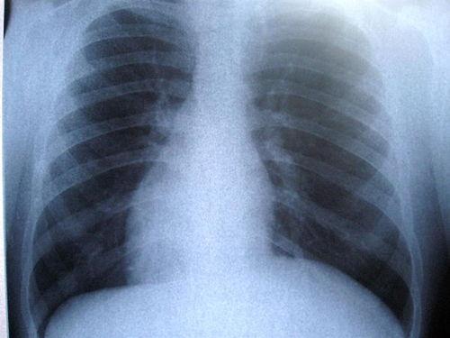 Un nou tratament eficient pentru tuberculoza rezistenta la medicamente considerat 'o mare descoperire'