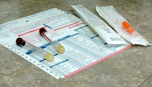 Verificarea sanatatii: ce va poate spune medicul in urma unui test de urina?