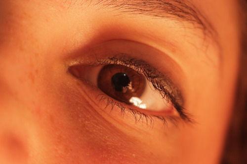 Punctele intunecare ale irisului pot fi cauzate de expunerea la soare