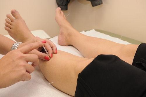 Ar putea acupunctura sa trateze probleme de sanatate ale femeilor?