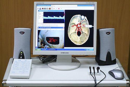 Indicatiile dopplerului vaselor cervico-cerebrale