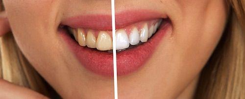 De ce se ingalbenesc dintii?